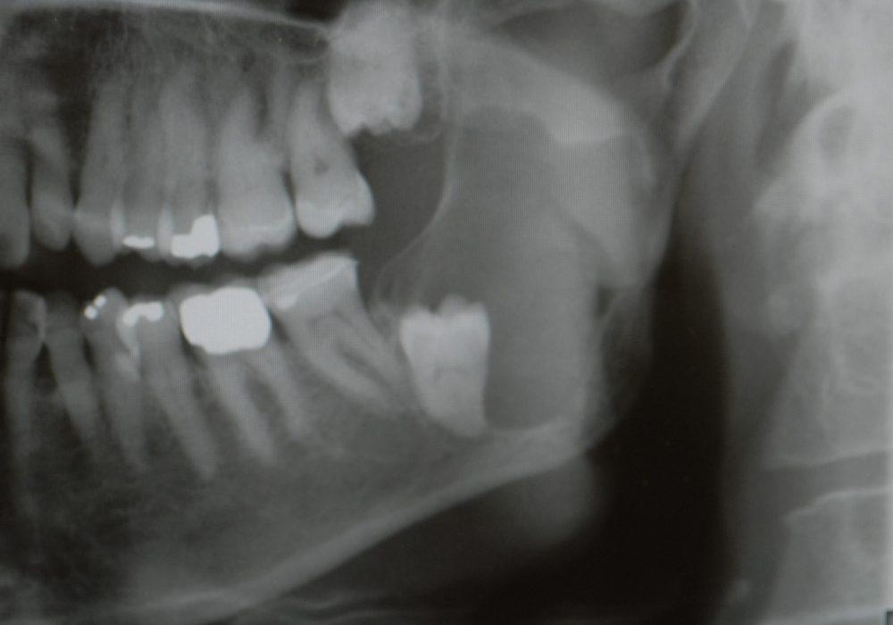 1. Cysta runt visdomstanden, röntgen